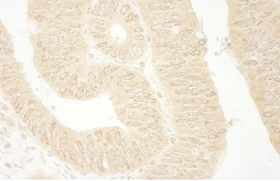 Immunohistochemistry (Formalin/PFA-fixed paraffin-embedded sections) - Rho guanine exchange factor 16 antibody (ab104261)