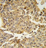 Immunohistochemistry (Formalin/PFA-fixed paraffin-embedded sections) - Anti-HIF-1-alpha antibody (ab104263)