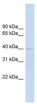 Western blot - FCRLM1 antibody (ab104344)