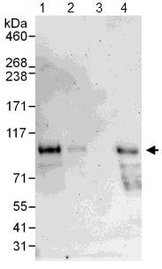 Western blot - Dishevelled 2 antibody (ab104438)