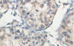 Immunohistochemistry (Formalin/PFA-fixed paraffin-embedded sections) - ABCB8 antibody (ab104498)