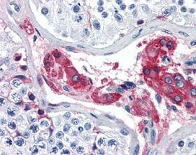 Immunohistochemistry (Formalin/PFA-fixed paraffin-embedded sections) - Factor XII antibody (ab104557)