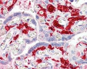 Immunohistochemistry (Formalin/PFA-fixed paraffin-embedded sections) - Factor XIIIa antibody (ab104559)