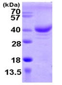 SDS-PAGE - ZCCHC17 protein (ab104634)