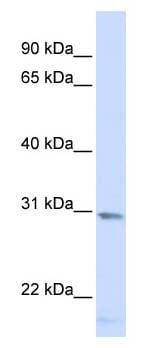 Western blot - SMUG1 antibody (ab104663)