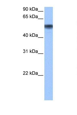 Western blot - Methionine Aminopeptidase 2  antibody (ab104665)