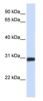 Western blot - BarX2 antibody (ab104666)