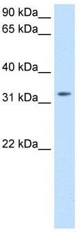 Western blot - Thyrotropin Releasing Hormone (TRH) antibody (ab104730)