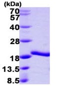 SDS-PAGE - A2LD1 protein (ab104748)