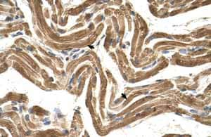 Immunohistochemistry (Formalin/PFA-fixed paraffin-embedded sections)-Anti-HYPE antibody(ab104763)