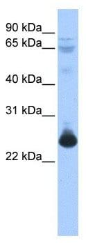 Western blot - TCEAL1 antibody (ab104787)