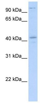 Western blot - FGD1 antibody (ab104789)