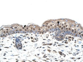 Immunohistochemistry (Formalin/PFA-fixed paraffin-embedded sections) - MUM1 antibody (ab104803)