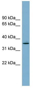 Western blot - DGAT2L3 antibody (ab104856)