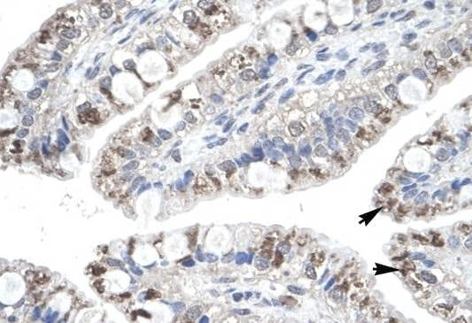 Immunohistochemistry (Formalin/PFA-fixed paraffin-embedded sections) - Macrophage Inflammatory Protein 4 antibody (ab104867)