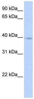 Western blot - IQCD antibody (ab104880)