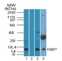 Western blot - BLBP antibody (ab104952)