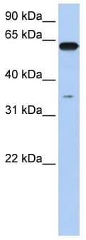 Western blot - KPNA6 antibody (ab104977)