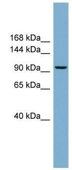Western blot - PPP1R3A antibody (ab104986)