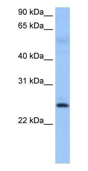 Western blot - ROPN1B antibody - N-terminal (ab105015)