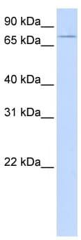 Western blot - UBASH3A antibody (ab105058)