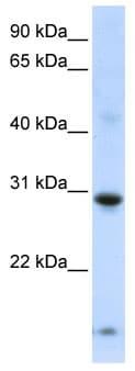 Western blot - zinc finger protein 138 antibody (ab105070)