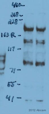 Western blot - Anti-TopBP1 antibody (ab105109)