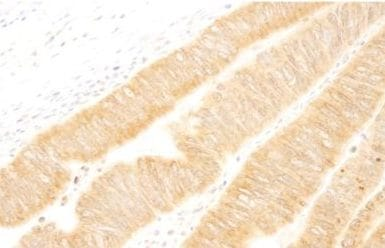 Immunohistochemistry (Formalin/PFA-fixed paraffin-embedded sections) - UVRAG antibody (ab105114)