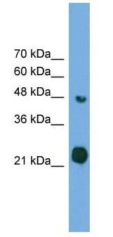 Western blot - RAB37 antibody (ab105189)