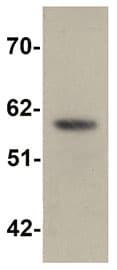 Western blot - SLC39A5 antibody (ab105194)