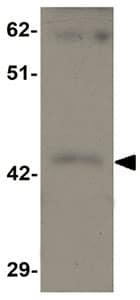 Western blot - SHISA9 antibody (ab105208)