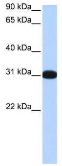 Western blot - MBNL2 antibody (ab105331)