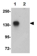 Western blot - ATP11B antibody (ab105377)