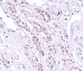 Immunohistochemistry (Formalin/PFA-fixed paraffin-embedded sections) - TCTN1 antibody (ab105381)
