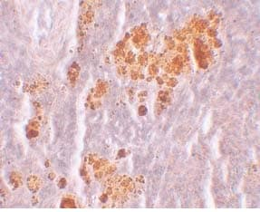 Immunocytochemistry/ Immunofluorescence - Anti-NLRX1 antibody (ab105412)