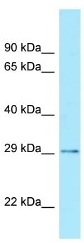 Western blot - Anti-CDX2 antibody (ab105505)