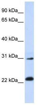 Western blot - AP3S1 antibody (ab105510)