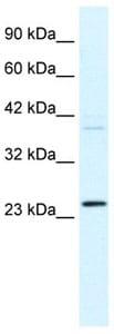 Western blot - Frequenin antibody (ab105524)