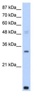 Western blot - CNOT7 antibody (ab105525)
