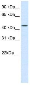 Western blot - BRAF35 antibody (ab105526)