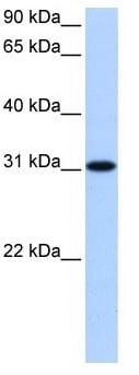 Western blot - TNRC18 antibody (ab105535)
