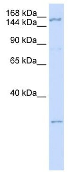 Western blot - ZNF687 antibody (ab105544)