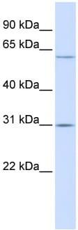 Western blot - TMEM106C  antibody (ab105552)