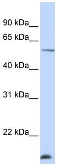 Western blot - DCAF12 antibody (ab105553)