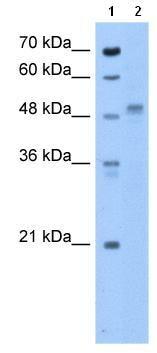 Western blot - ZP4 antibody (ab105560)
