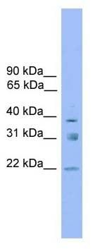 Western blot - RNF167 antibody (ab105568)