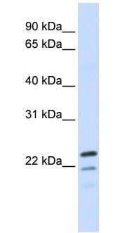 Western blot - REEP1 antibody (ab105583)
