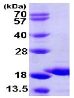 SDS-PAGE - HSPC210 protein (ab105621)