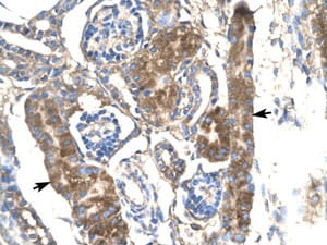 Immunohistochemistry (Formalin/PFA-fixed paraffin-embedded sections) - SLC17A2 antibody (ab105638)