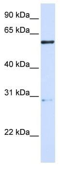 Western blot - MANEA antibody (ab105647)